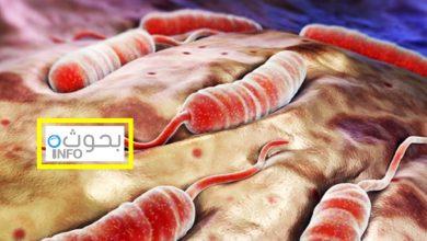 بحث حول الكوليرا